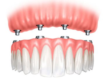 Fixed-dentures (Copy)
