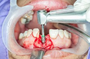 74583421 dental implants surgery in real patient 300x199 - اصطلاحات رایج دندانپزشکی