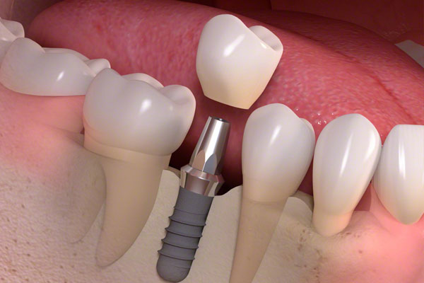 Single-Tooth-Implants