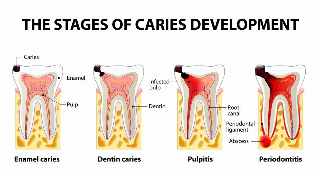 dental caries process periodontitis houston 1024x567 - جلوگیری از پوسیدگی دندان
