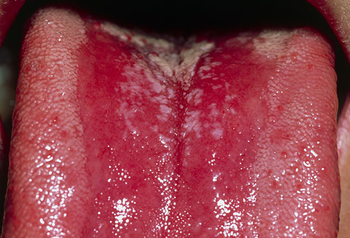 PRinc photo of thrush on tongue - 17 مشکل دهان