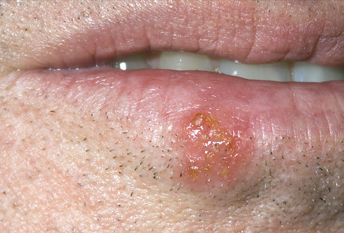 PRinc rm photo of cold sore - 17 مشکل دهان