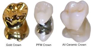 dental crowns in durban north 2 - تاج دندان