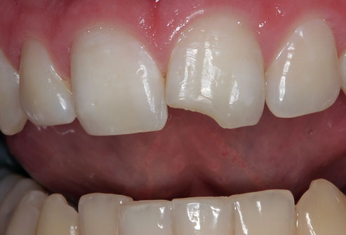 drtomfoley photo of chipped tooth - 17 مشکل دهان