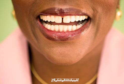 getty rf photo of gap between front teeth - 15 مشکل رایج دندان