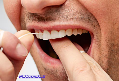 getty rf photo of man flossing teeth - 15 مشکل رایج دندان