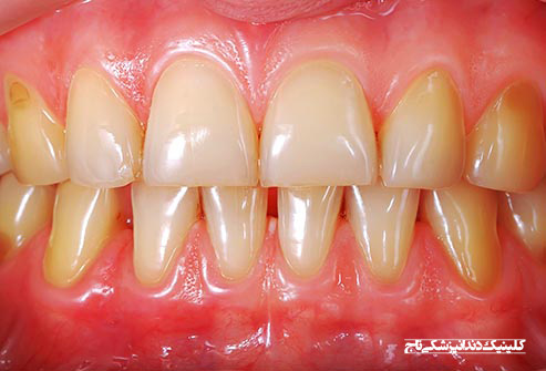 getty rf photo of stained teeth - 15 مشکل رایج دندان
