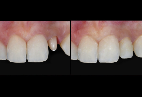 getty rf photo of tooth prepared for crown - 15 مورد از دندانپزشکی زیبایی