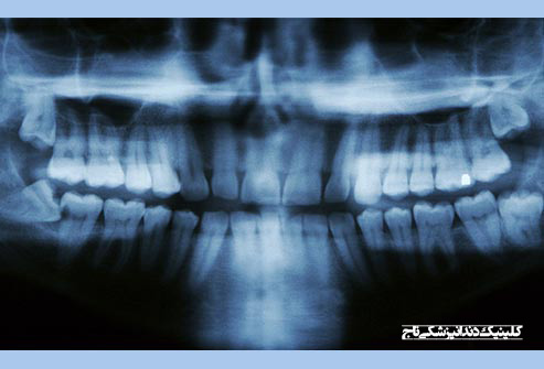 getty rf xray showing impacted wisdom teeth - 15 مشکل رایج دندان