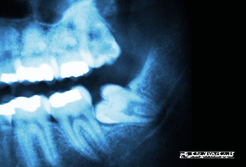 getty rm photo of impacted wisdom tooth - 15 مشکل رایج دندان