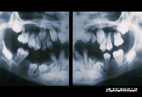 getty rm xray of hyperdontia - 15 مشکل رایج دندان