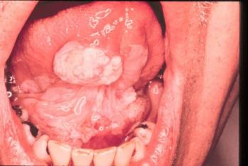 leukoplakia and squamous cell carcinoma high - سرطان دهان را چگونه تشخیص دهیم؟