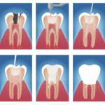root-canal-treatment-endodontic-procedure