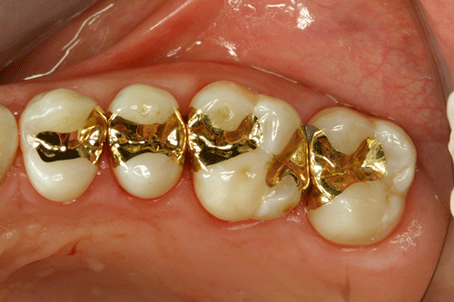 080516035236Gold Inlays in the Mouth - انواع مواد پرکننده دندان