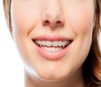 braces made from wire and acrylic - ارتودنسی چیست؟