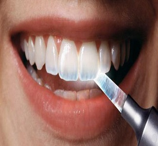 Everything You Need to Know About Tooth Enamel Erosion Part I - کلینیک شبانه روزی دندانپزشکی تاج
