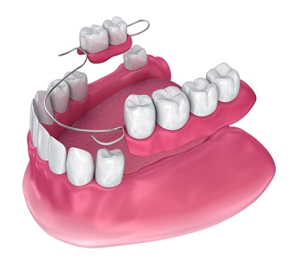 Medically accurate 3D illustration of removable partial denture - دندان مصنوعی (پروتز دندان)