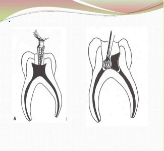 difference between pulpotomy and pulpectomy 4 638 - پالپوتومی در بزرگسالان