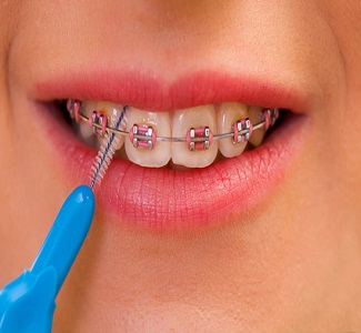 how take care for your teeth when wearing braces leicester - نقش انتخاب دندانپزشک برای حذف پلاک