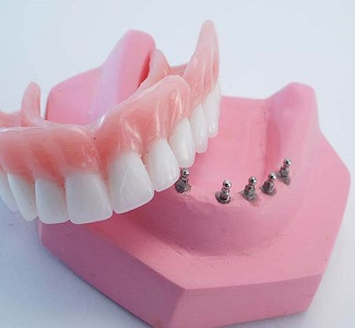 snap on dentures - دندان مصنوعی (پروتز دندان)