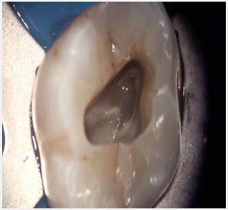 yt Pulpotomy in an Adult Tooth - پالپوتومی در بزرگسالان