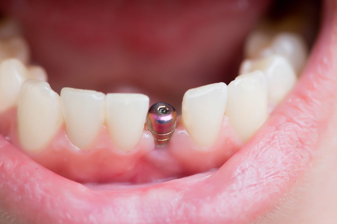 Georgia Dental Implant Center April Single Tooth and Full Mouth Dental Implants Image1 1170x780 - چگونگی کاشت دندان ایمپلنت