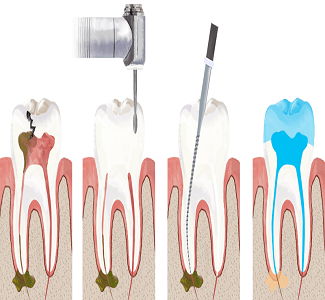root canal - حساسیت دندان هنگام جویدن