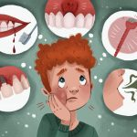 tooth-implant-infection