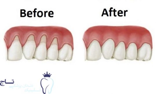 Grow Back Your Receding Gums In No Time With The Help Of These Natural Remedies new e1548438132333 - همه چیزهایی که باید درمورد عقب رفتگی لثه بدانید !