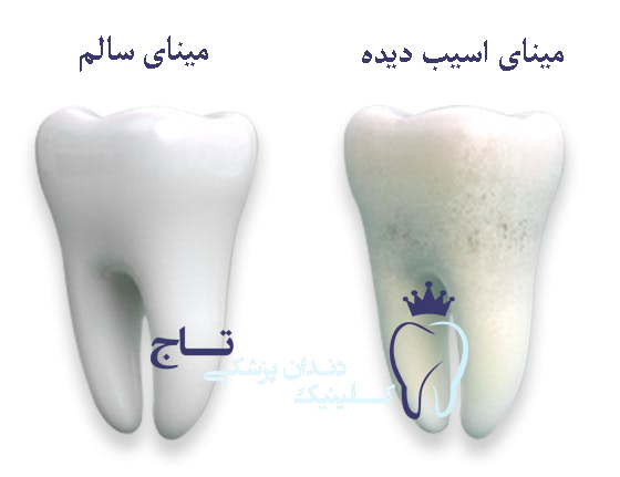 comparison of healthy enamel and damaged enamel mob - فرسایش و ترمیم مینای دندان