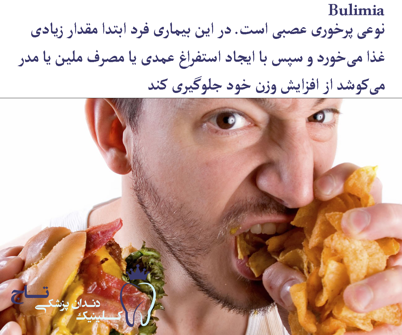 self help strategies for dealing with bulimia nervosa 1 - فرسایش و ترمیم مینای دندان