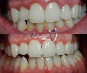teeth before and after scaling e1546471413952 - علل و درمان های ژنژيويت یا ورم لثه