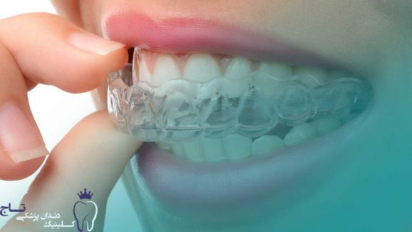 CA Aligner Therapy Clear