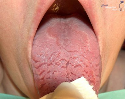 fissured geographic tongue br image credit kozlovsk commonswiki 2006 br new e1551056423349 - زبان جغرافیایی چیست ؟ هر آنچه ک باید بدانید