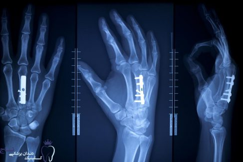 x ray of hand with surgical pins and screws in the bone new e1549486949723 - همه چیز درمورد پیوند استخوان