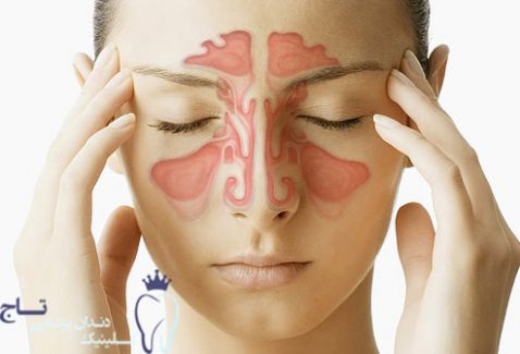 webmd composite image of sinuses new e1551395570830 - شش دلیل بوی بدن دهان