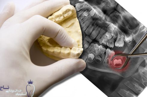 wisdom teeth on an x ray of the mouth and a gloved hand looking at a model of the lower teeth on top new e1551823435509 - درمان های خانگی برای کاهش درد دندان عقل